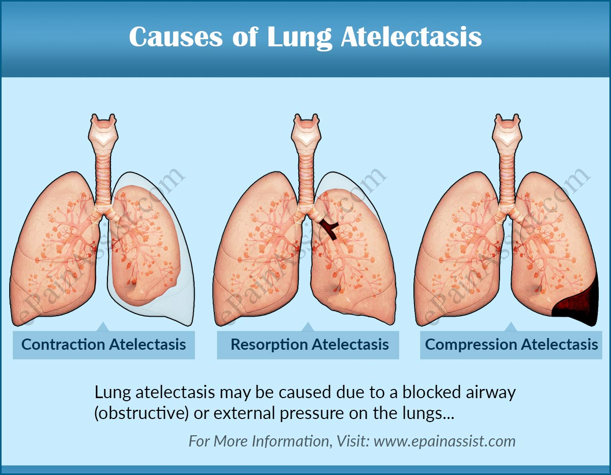 causes, symptoms of lung atelectasis & its diagnosis, Cephalic Vein