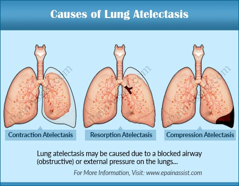 Causes of Lung Atelectasis