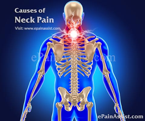 Causes of Neck Pain or Cervicalgia