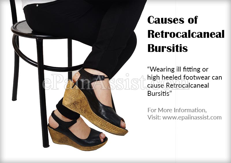 Causes of Retrocalcaneal Bursitis or Achilles Tendon Bursitis