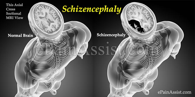 Causes of Schizencephaly