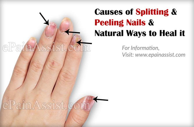 Causes Of Splitting And Peeling Nails Natural Ways To Heal It