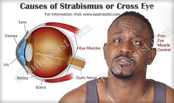 Causes of Strabismus or Cross Eye