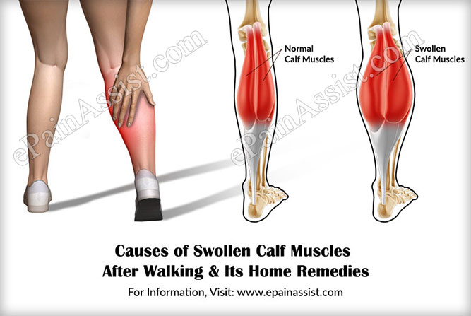 Causes Of Swollen Calf Muscles After Walking Its Home Remes
