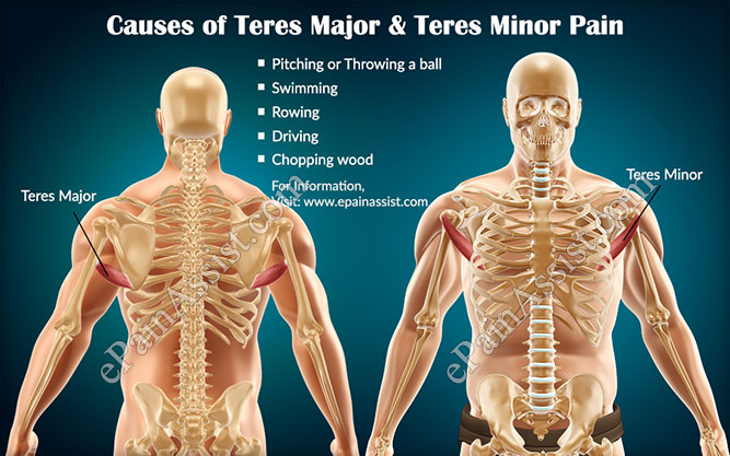 Teres Major And Teres Minor Pain Causes Symptoms Treatment