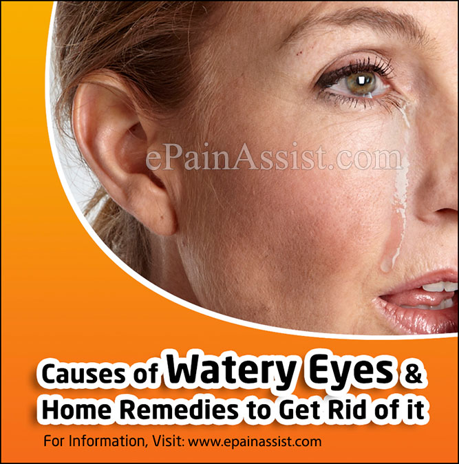 Causes of Watery Eyes and Home Remedies to Get Rid of it