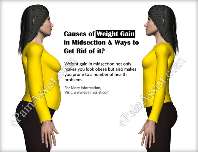 Weight loss centers in columbus ga