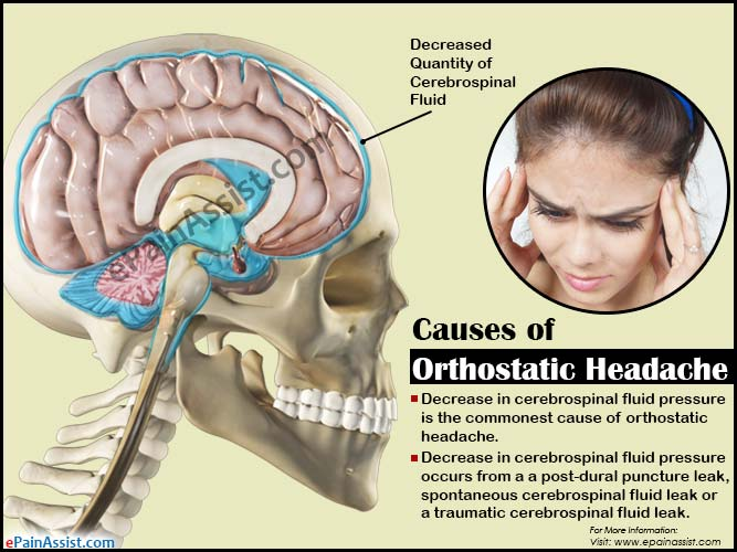 What is Orthostatic Headache?