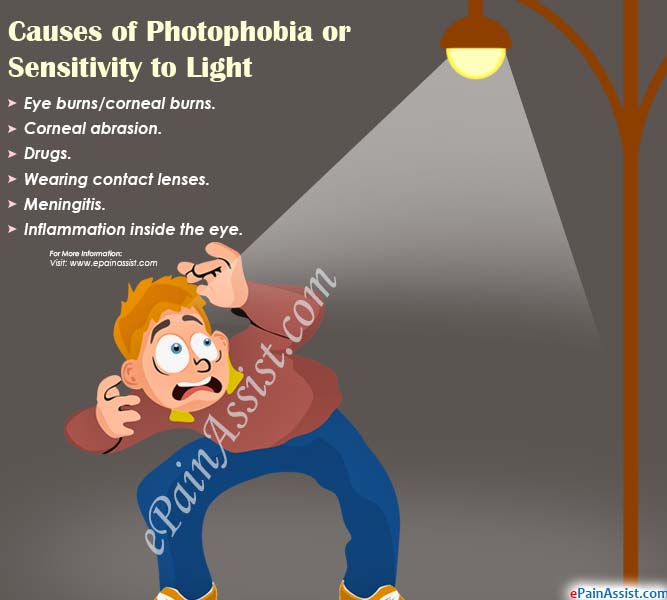 Causes of photophobia