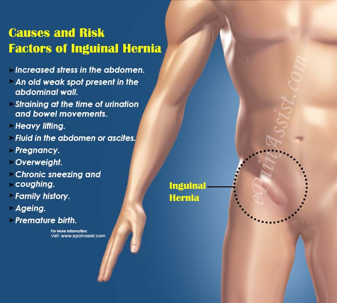 Causes and Risk Factors of Inguinal Hernia