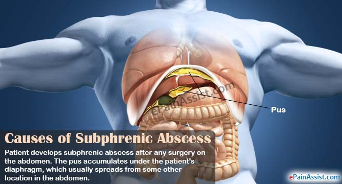 Causes of Subphrenic Abscess