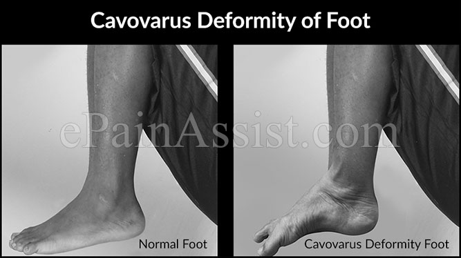 Cavovarus Deformity of Foot