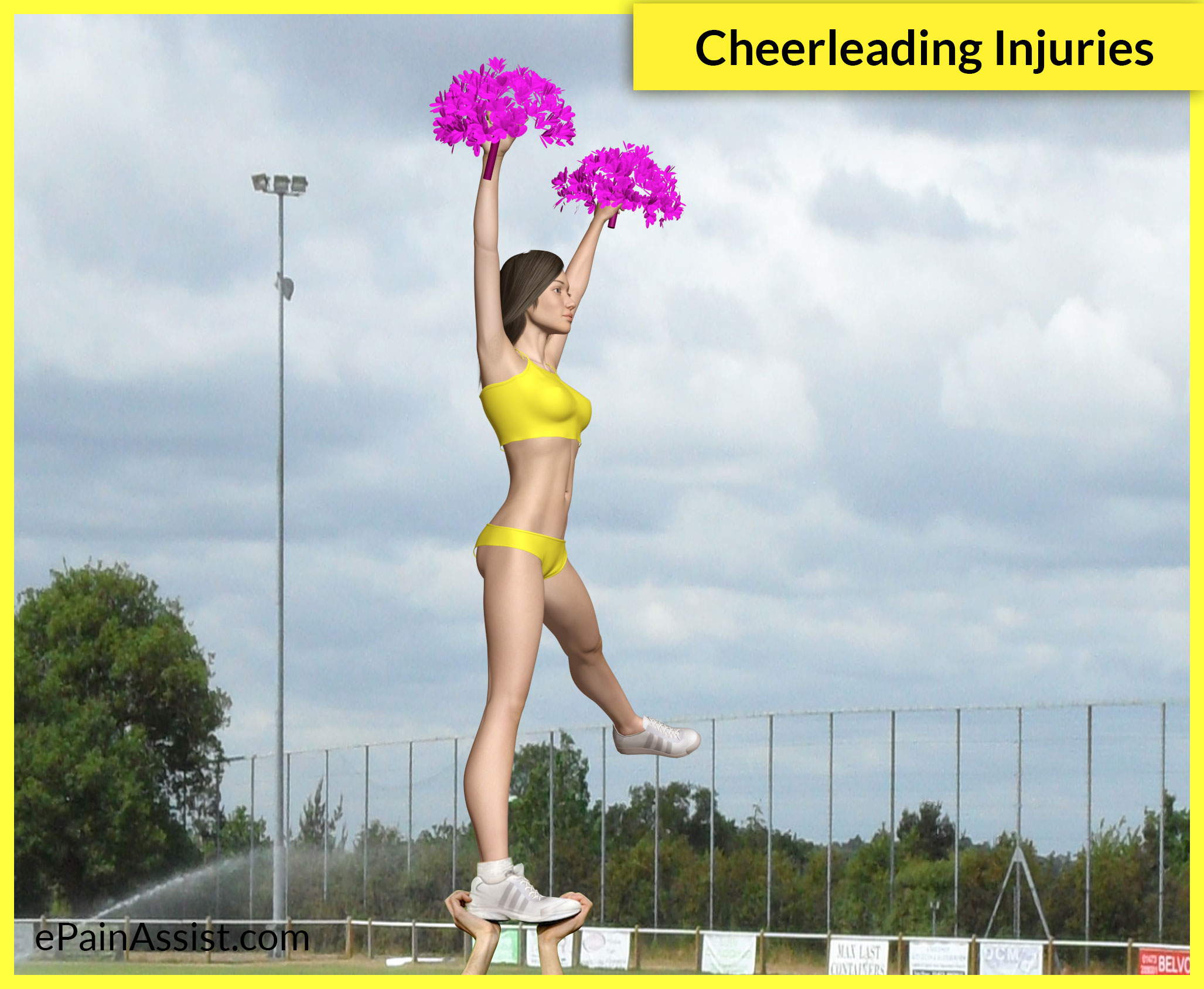 Cheerleading Injuries