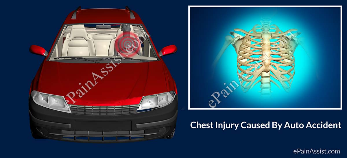 Chest Injury Caused By Auto Accident