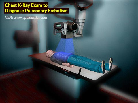Chest X-Ray Exam to Diagnose Pulmonary Embolism (PE)