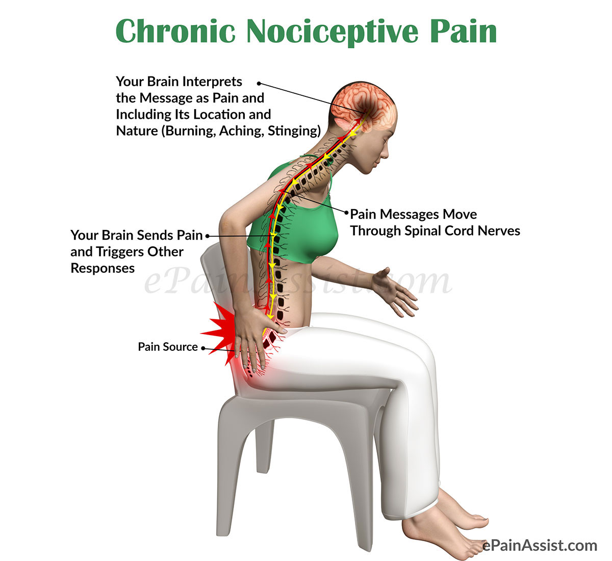 Chronic Nociceptive Pain|Classification|Anatomy|Causes|Risk Factors ...