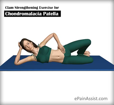 Clam Strengthening Exercise for Chondromalacia Patella (CMP)