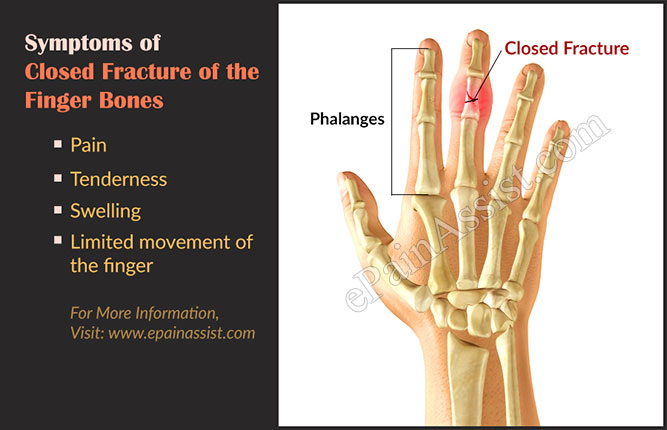 Symptoms of Closed Fracture of the Finger Bones or Phalanges