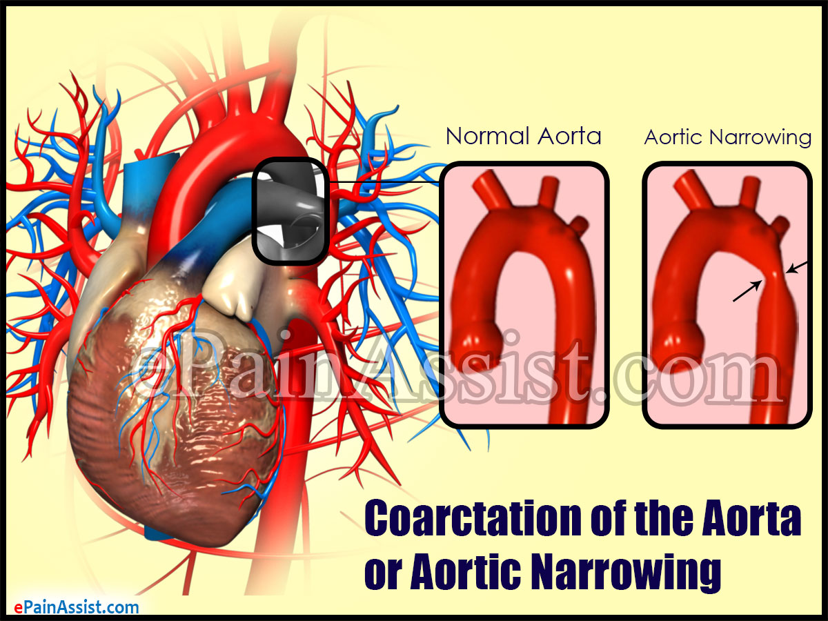 What are the Risk Factors for Coarctation of the Aorta (COA) or Aortic Narrowing?