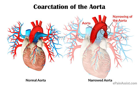What Is Coarctation of the Aorta or Aortic Narrowing?