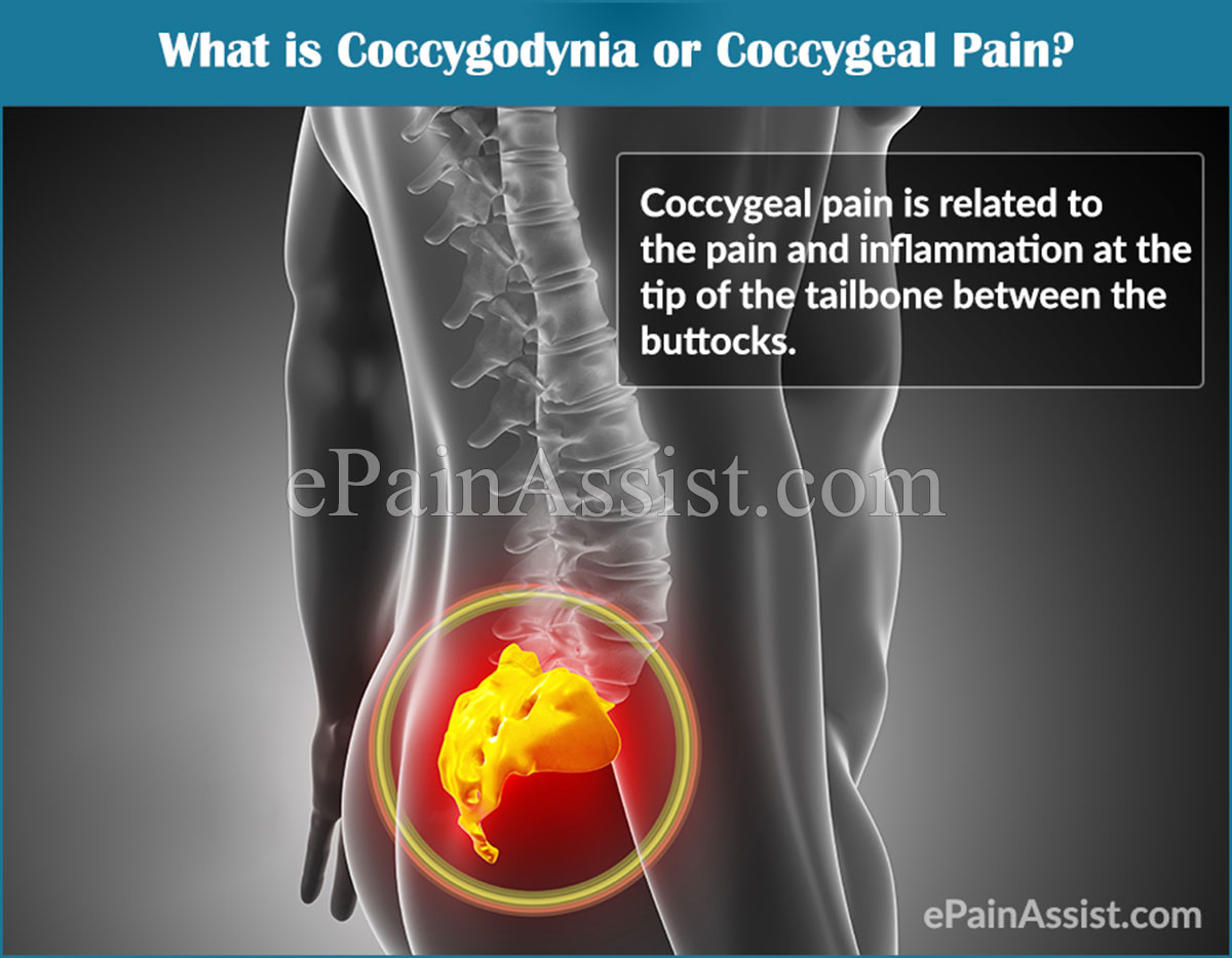 What is Coccygodynia or Coccygeal Pain?