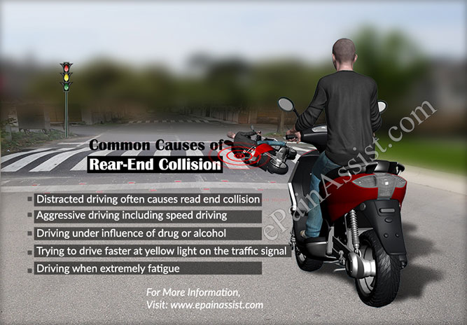 Common Causes of Rear-End Collision