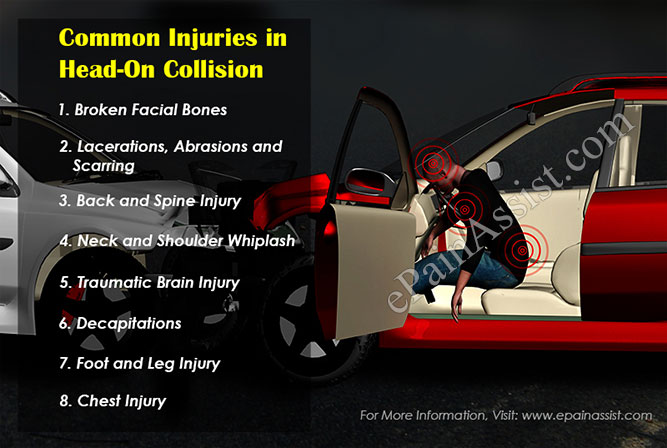 Common injuries in head on collision role of personal for There are usually collisions in a motor vehicle crash