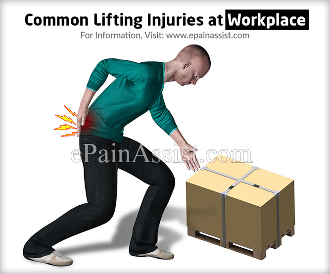 Common Lifting Injuries at Workplace