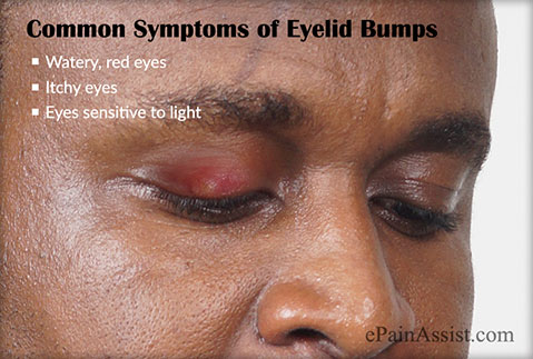 What are Some Common Symptoms of Eyelid Bumps?