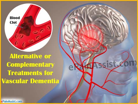 Alternative or Complementary Treatments for Vascular Dementia
