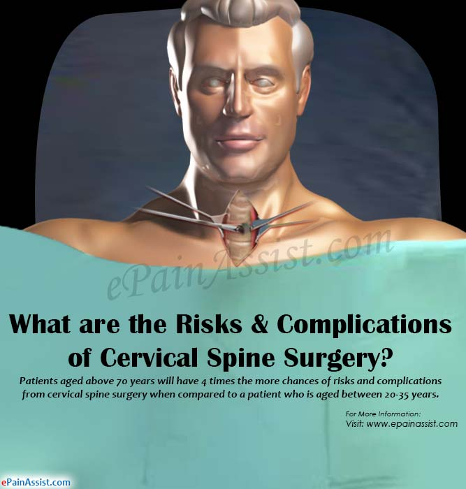 What are the Risks & Complications of Cervical Spine Surgery?