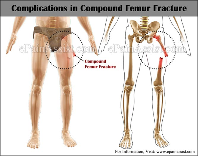 complications in compound femur fracture