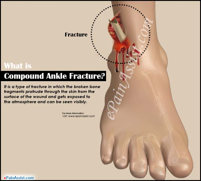 What is Compound Ankle Fracture?