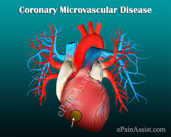 Coronary Microvascular Disease or Small Vessel Heart Disease