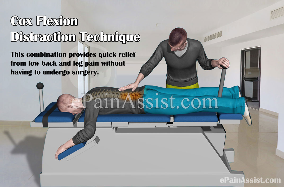 Cox Flexion Distraction Technique or Cox Technic