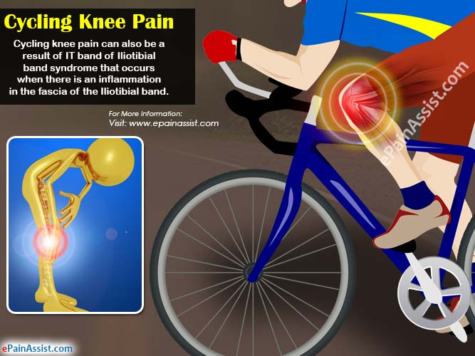 Common Conditions Of Cycling Knee Pain