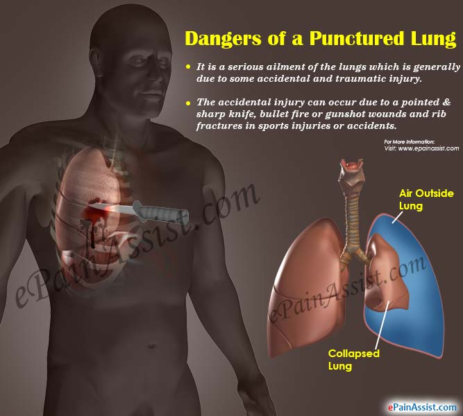 Dangers of a Punctured Lung