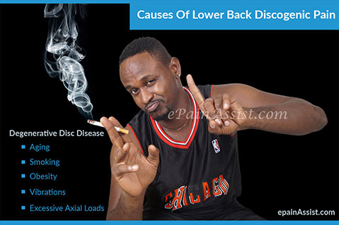 Causes And Risk Factors of Degenerative Disc Disease or DDD