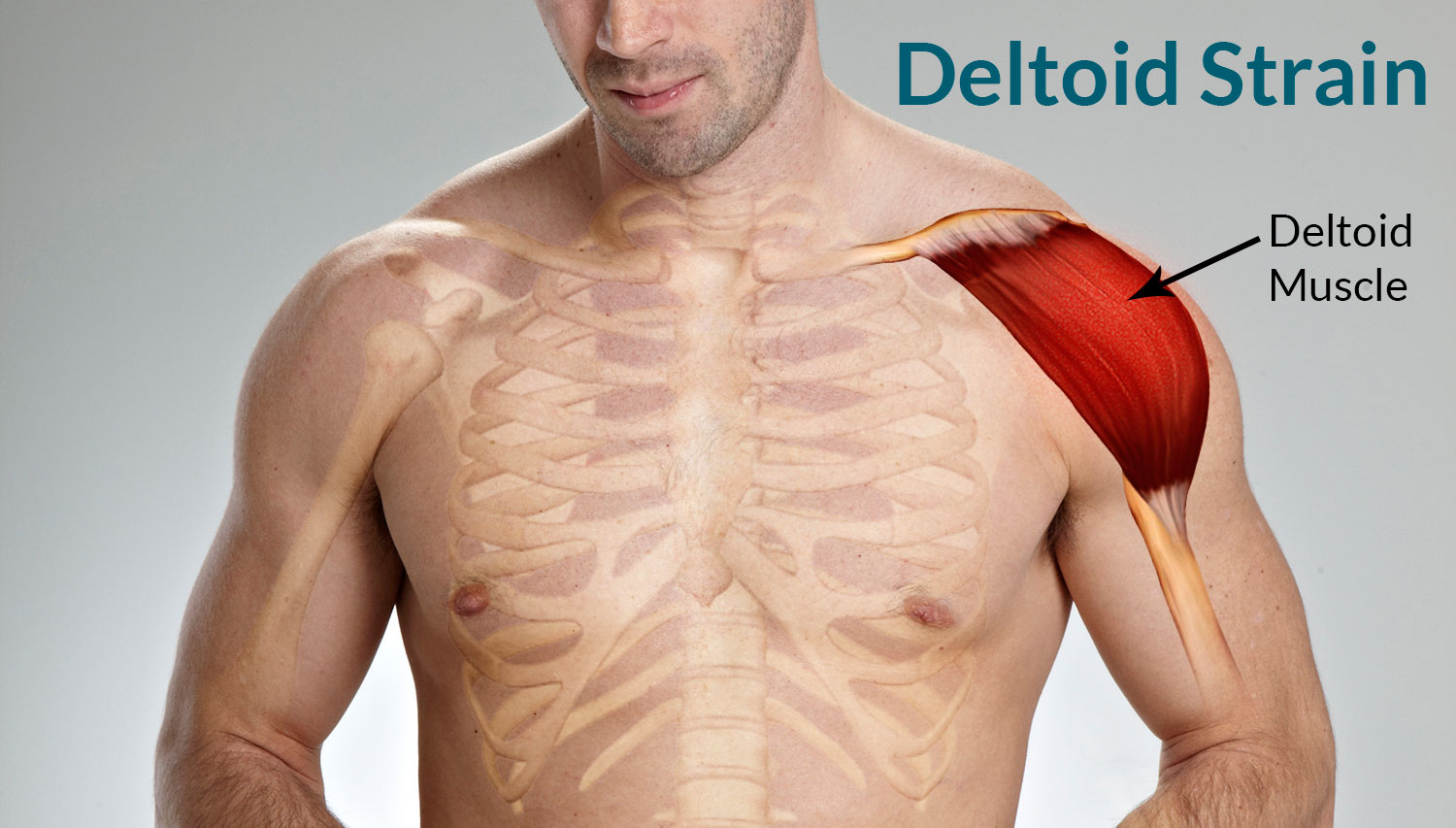Deltoid Strain Treatment Causes Symptoms Classification
