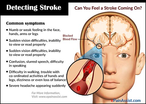 Detecting Stroke: Can You Feel a Stroke Coming On?