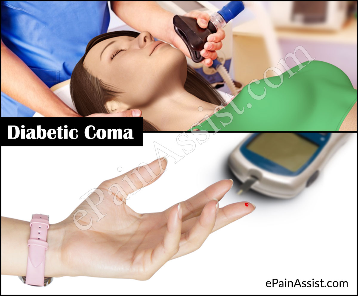 What is Diabetic Coma and What Happens When You go Into a Diabetic Coma?