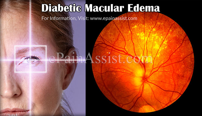 What is Diabetic Macular Edema?