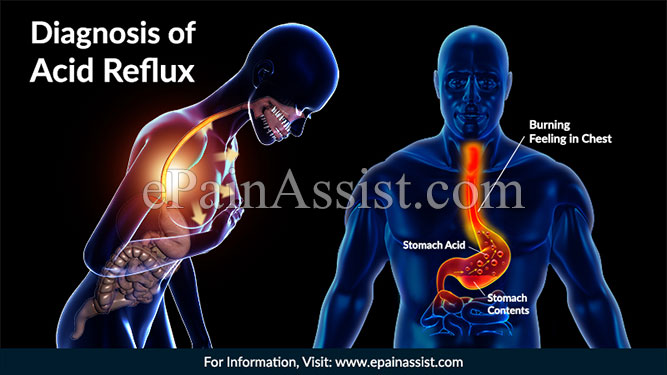 Diagnosis of Acid Reflux