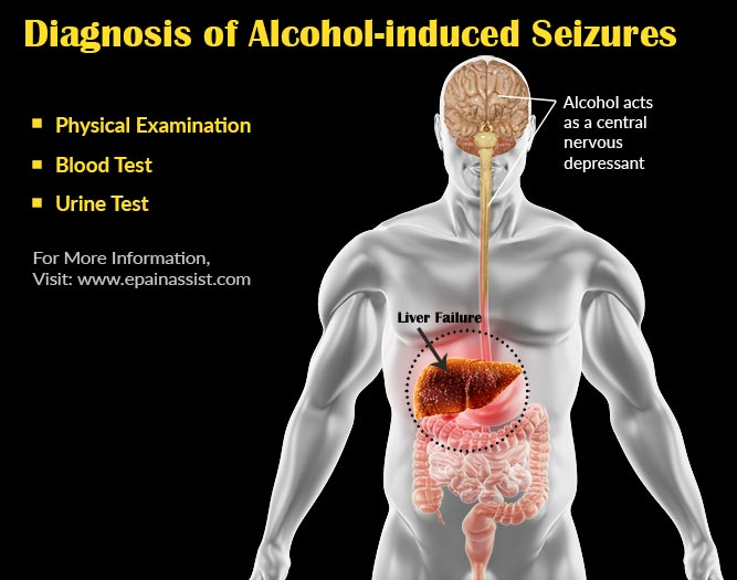Diagnosis of Alcohol-induced Seizures