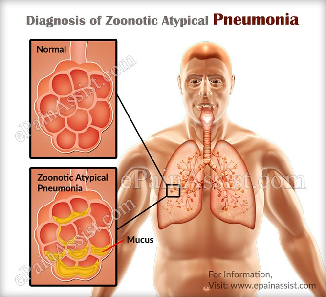 Diagnosis of Zoonotic Atypical Pneumonia