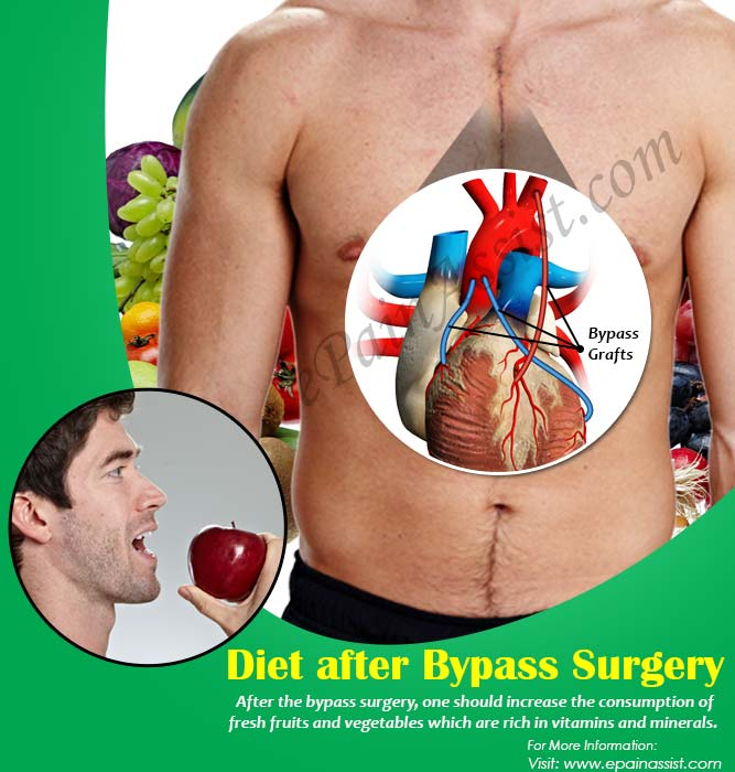 Diet after Bypass Surgery