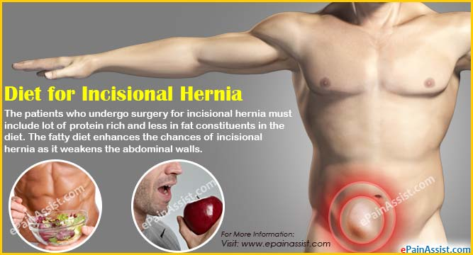 Postoperative Care after Hernia Repair