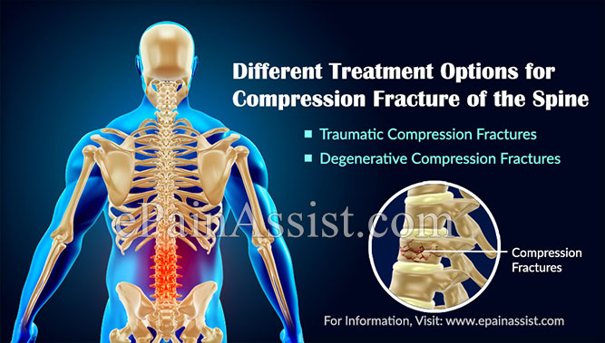 Different Treatment Options for Compression Fracture of the Spine
