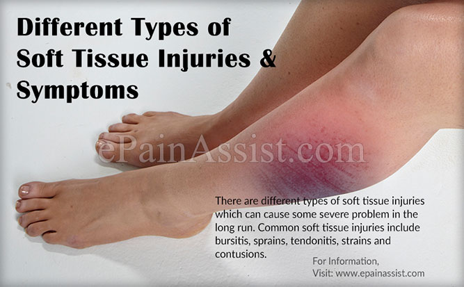Different Types of Soft Tissue Injuries & Its Symptoms