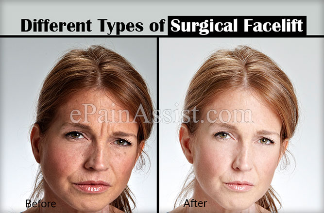 Different Types of Surgical Facelifts